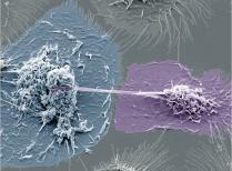 Co-infection tuberculose-VIH : des nanotubes favorisent la propagation du VIH dans les macrophages
